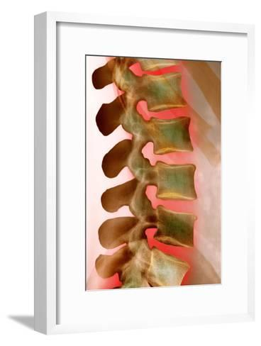 Lower Back Pain, X-ray-Science Photo Library-Framed Art Print