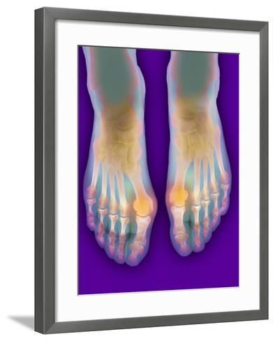 Bunions, X-ray-Science Photo Library-Framed Art Print