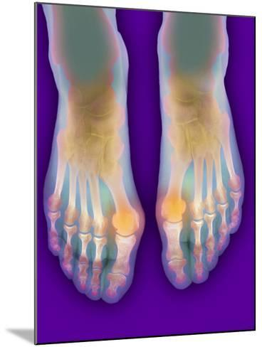 Bunions, X-ray-Science Photo Library-Mounted Photographic Print