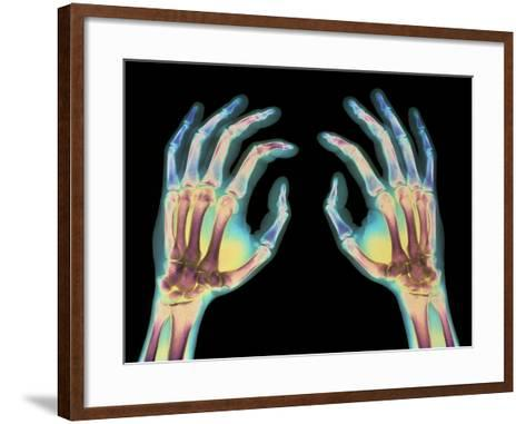 Coloured X-ray of Healthy Human Hands-Science Photo Library-Framed Art Print