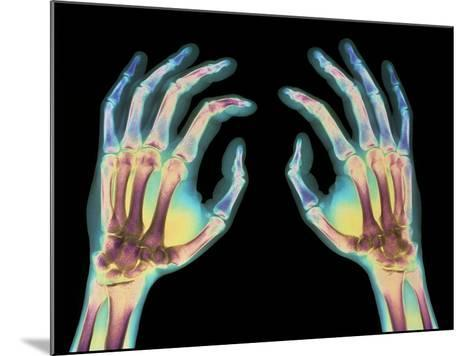 Coloured X-ray of Healthy Human Hands-Science Photo Library-Mounted Photographic Print