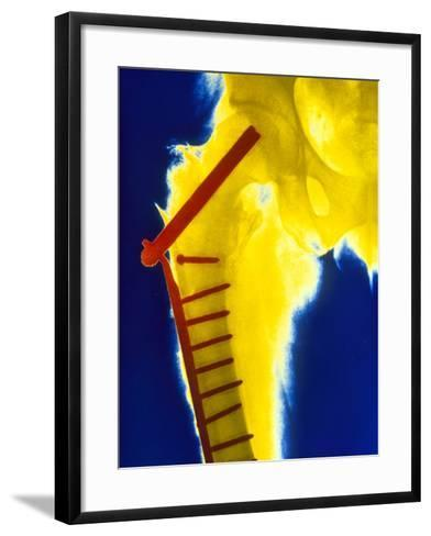 X-ray of the Broken Head of the Femur-Science Photo Library-Framed Art Print