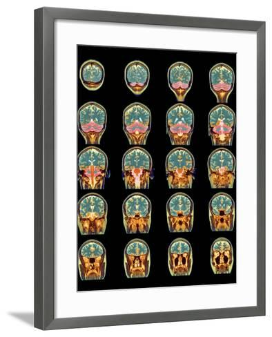 Healthy Brain, MRI Scans-Science Photo Library-Framed Art Print