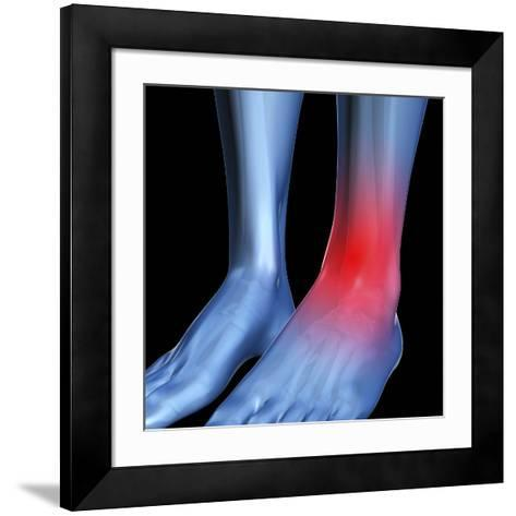 Ankle Pain, Conceptual Artwork-David Mack-Framed Art Print