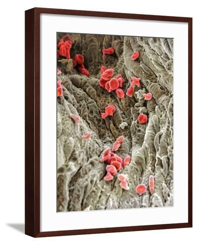 Red Blood Cells, SEM-Science Photo Library-Framed Art Print
