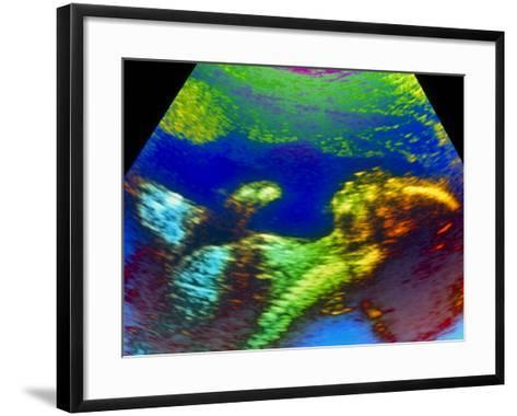 Ultrasound Scan of 20 Week Old Foetus (side View)-Science Photo Library-Framed Art Print
