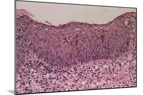 LM of Cervical Cells with Moderate Dysplasia CIN 2-Dr. E. Walker-Mounted Photographic Print