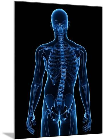 Scoliosis of the Spine, Artwork-SCIEPRO-Mounted Photographic Print