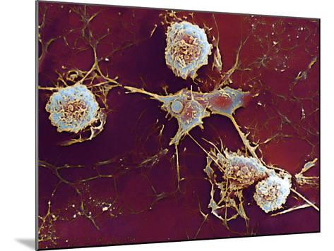 Multiple Sclerosis, SEM-Dr. John Zajicek-Mounted Photographic Print