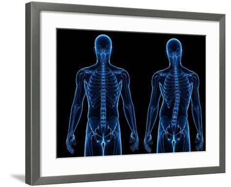 Scoliosis of the Spine, Artwork-SCIEPRO-Framed Art Print