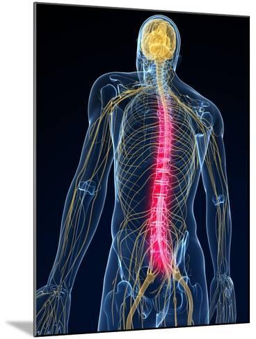 Back Pain, Conceptual Artwork-SCIEPRO-Mounted Photographic Print