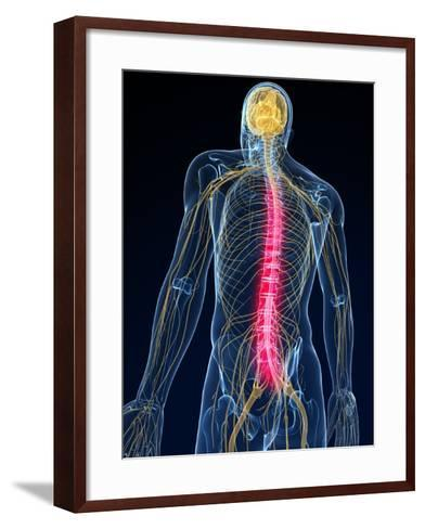 Back Pain, Conceptual Artwork-SCIEPRO-Framed Art Print