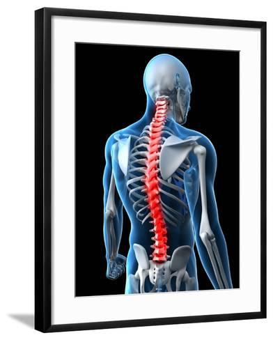 Back Pain, Conceptual Artwork-SCIEPRO-Framed Art Print