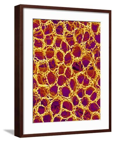 Blood Vessel Cast from Stomach of a Rat-Micro Discovery-Framed Art Print