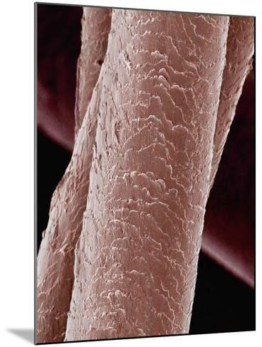 Human Hair-Micro Discovery-Mounted Photographic Print