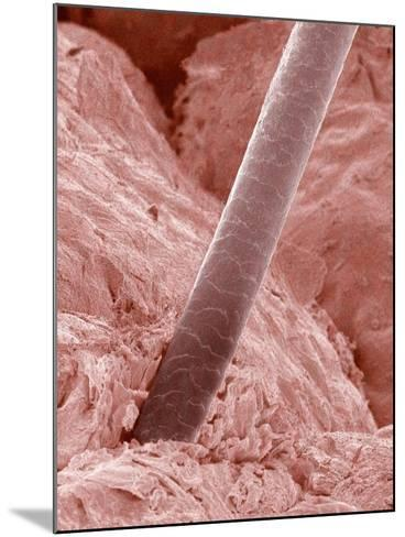 Human Hair and Skin-Micro Discovery-Mounted Photographic Print