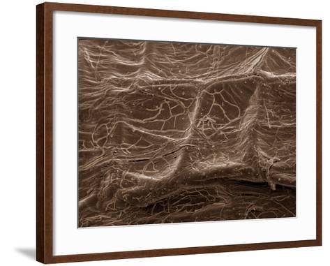 Scanning Electron Micrograph (Sem): Mycorrhiza--Framed Art Print