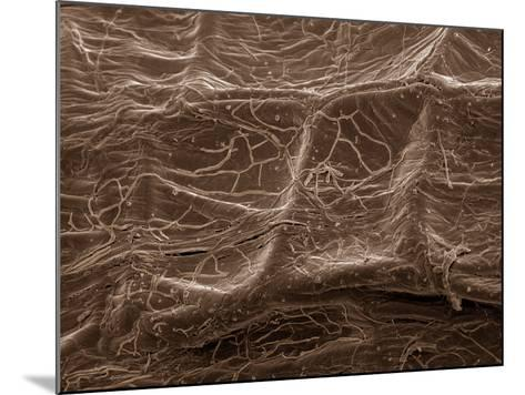 Scanning Electron Micrograph (Sem): Mycorrhiza--Mounted Photographic Print