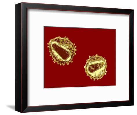 Hiv Viruses-Hans Gelderblom-Framed Art Print