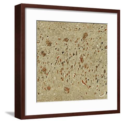Alzheimer's Disease. Light Micrograph Showing Both Neurofibrillary Tangles and Plaques-Thomas Deerinck-Framed Art Print