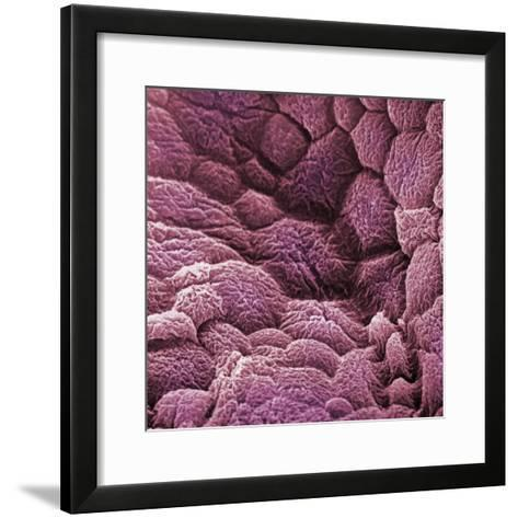 A Scanning Electron Micrograph of the Epithelial Cell Lining of the Bladder-David Phillips-Framed Art Print