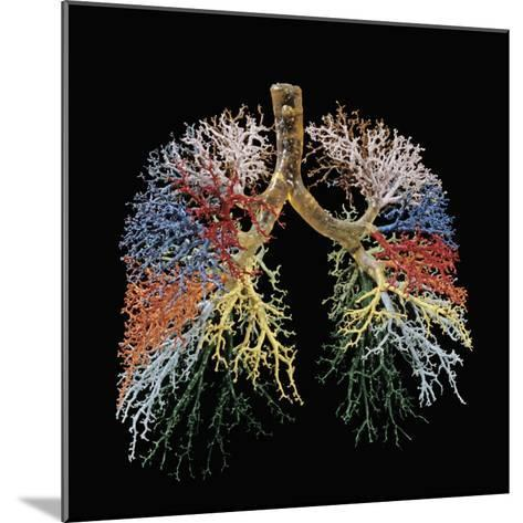 Resin Cast of Lungs, Bronchial Tree-Ralph Hutchings-Mounted Photographic Print