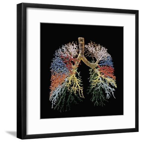 Resin Cast of Lungs, Bronchial Tree-Ralph Hutchings-Framed Art Print