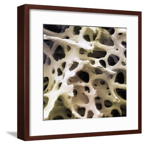Human Femur Cancellous, Trabecular, or Spongy Bone-Fred Hossler-Framed Art Print