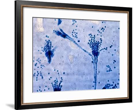 Penicillium Fungus Culture from a Human Patient, Lactophenol Ccotton Blue Preparation-Gladden Willis-Framed Art Print