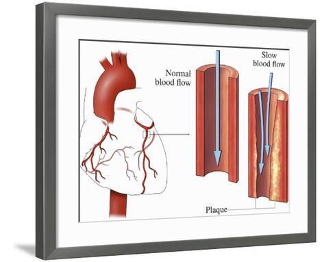 This Medical Exhibit Pictures an Anterior (Front) View of the Heart and Coronary Arteries--Framed Art Print