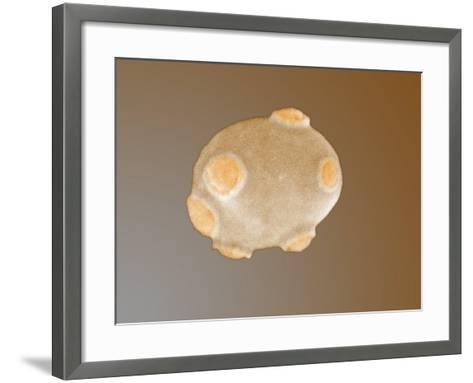 Yeast Cell with Bud Scars-Richard Kessel-Framed Art Print