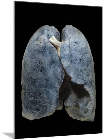 A Smoker's Damaged Lungs-Ralph Hutchings-Mounted Photographic Print