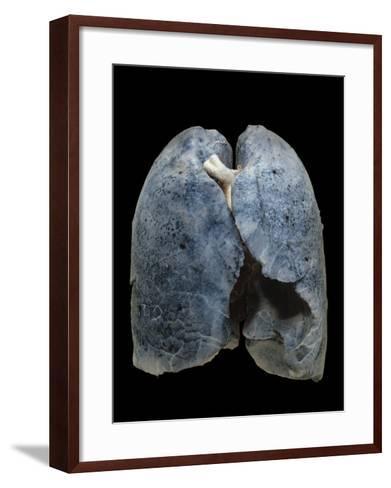 A Smoker's Damaged Lungs-Ralph Hutchings-Framed Art Print