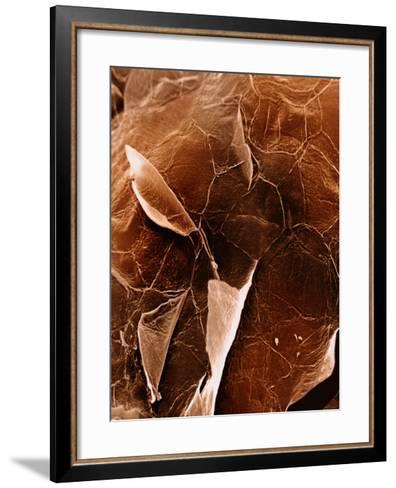 The Surface of Human Skin Epidermis-David Phillips-Framed Art Print
