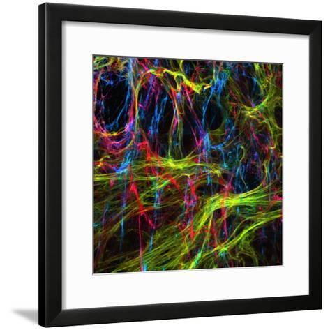 Extracellular Matrix Is the Substance or Matter of a Tissue Which Is Not a Cell-Edna Cukierman-Framed Art Print