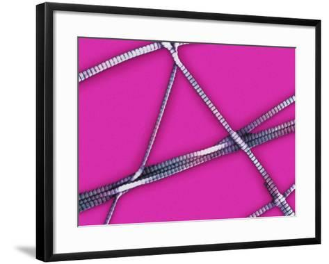 Collagen Fibrils from Human Skin Showing the Characteristic Cross Banding, SEM-Donald Fawcett-Framed Art Print