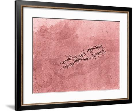 Filaments of DNA Spreading from the Core Protein of Isolated Chromosome-Donald Fawcett-Framed Art Print