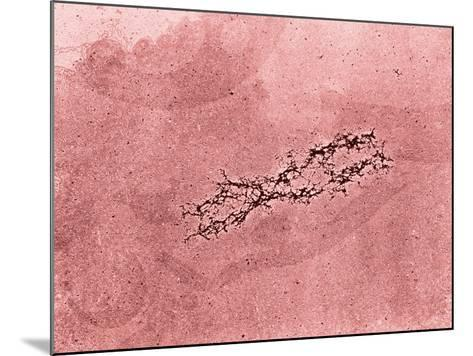 Filaments of DNA Spreading from the Core Protein of Isolated Chromosome-Donald Fawcett-Mounted Photographic Print