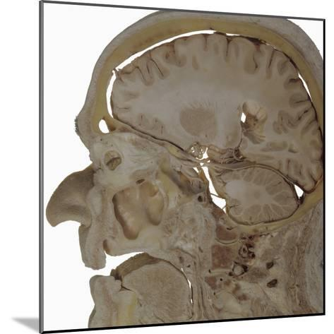 The Human Head and Brain in Sagittal Section Revealing the Position of the Brain, Brainstem-Ralph Hutchings-Mounted Photographic Print