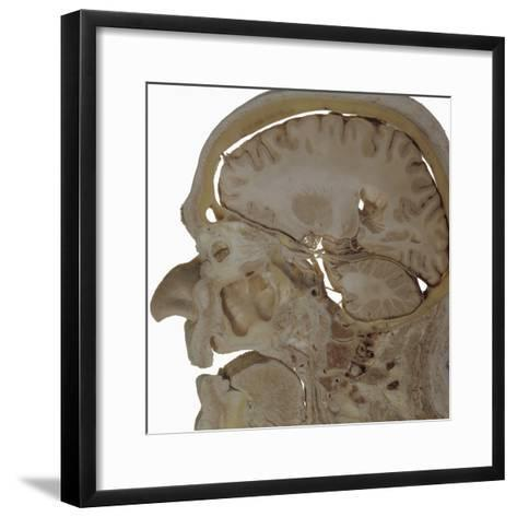 The Human Head and Brain in Sagittal Section Revealing the Position of the Brain, Brainstem-Ralph Hutchings-Framed Art Print
