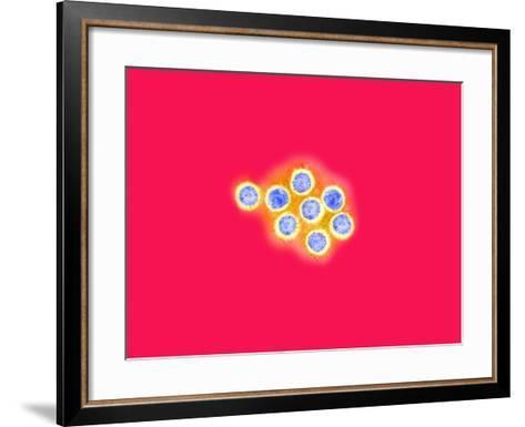 Herpes Simplex Viruses, Negative Stain, Tem X71,000-Gopal Murti-Framed Art Print