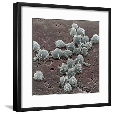 Macrophages on the Surface of Endothelium SEM X3000-David Phillips-Framed Art Print