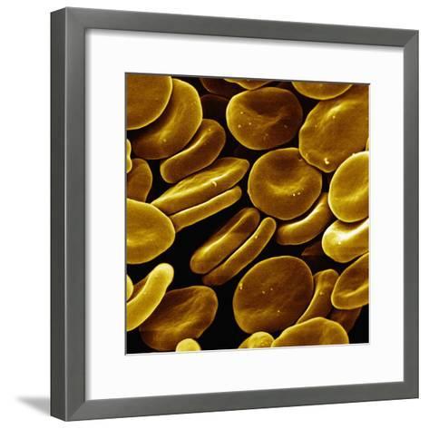 Red Blood Cells, SEM-David Phillips-Framed Art Print