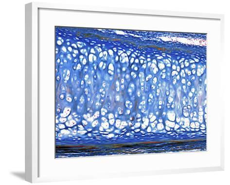 Hyaline Cartilage from the Trachea, Mallory's Stain, LM X70-Alvin Telser-Framed Art Print