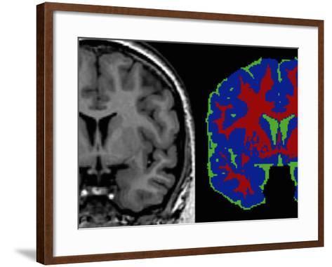 Brain Scans: in the Tissue Segmented Image-Arthur Toga-Framed Art Print