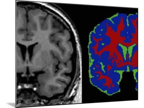 Brain Scans: in the Tissue Segmented Image-Arthur Toga-Mounted Photographic Print