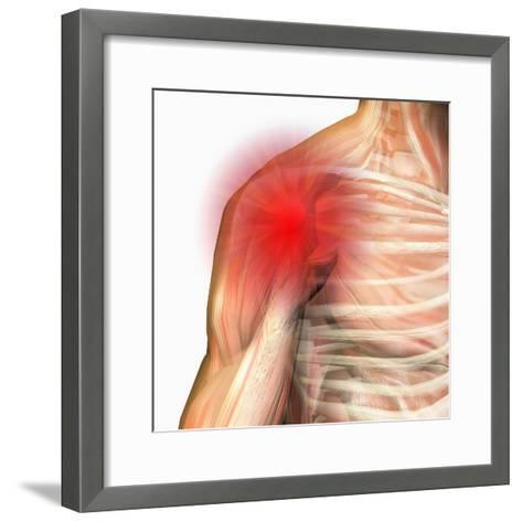Shoulder Pain, Human Male Shoulder Ball And Socket Joint, Showing Bones And Muscles-Carol & Mike Werner-Framed Art Print
