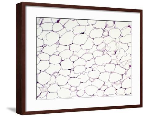Human Adult Unilocular or White Fat Adipose Tissue, H&E Stain, LM X64-Gladden Willis-Framed Art Print