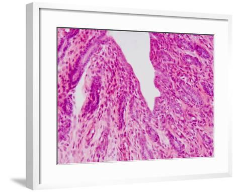 Cross-Section Through the Human Vagina, LM X100-Scientifica-Framed Art Print