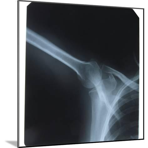 X-Ray Photograph of Shoulder of Person--Mounted Photographic Print